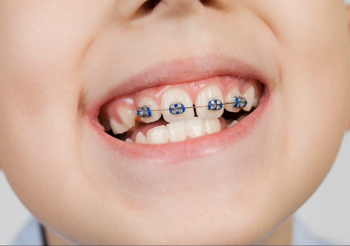 Aparelho dentário em crianças